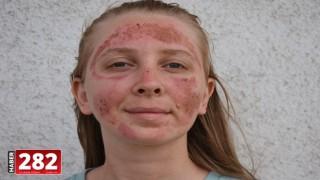 Güzellik merkezinde bakım yaptırdıktan sonra yüzünde yanıklar oluşan kişi polise başvurdu
